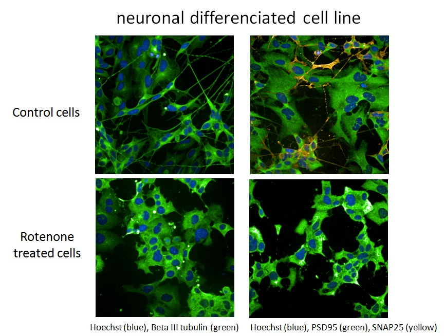 neuronal differenciated cell line