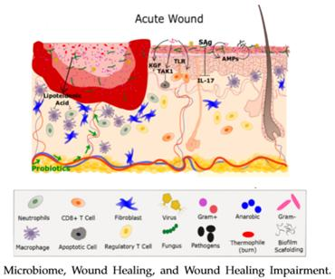 The human skin microbiota could promote wound healing ...